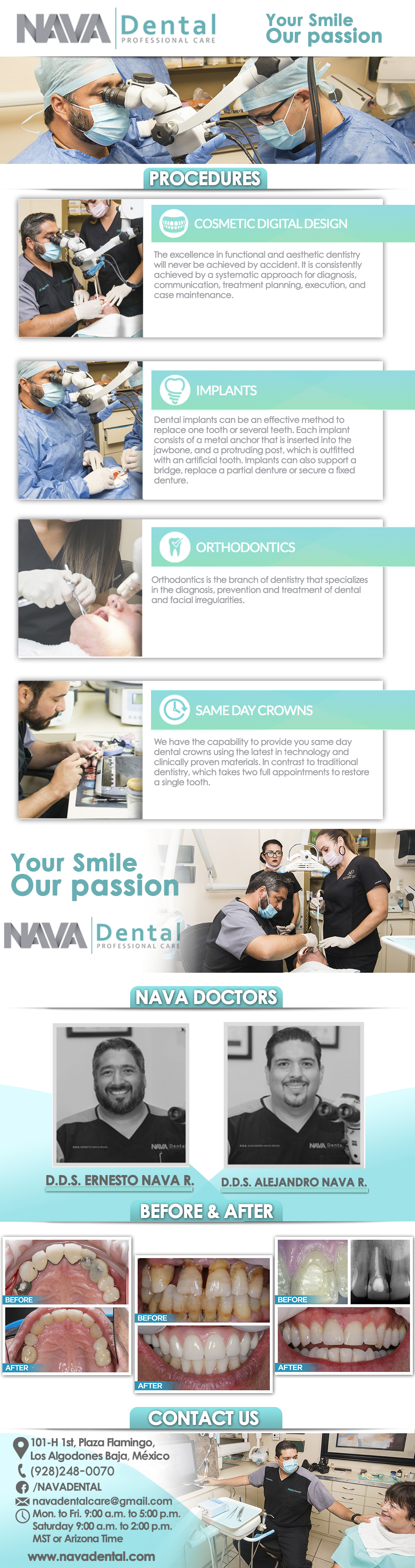 Nava Dental Care in Algodones  in Algodones  General Dentistry and Specialists We offer complete dental services including general dentistry, cosmetic dentistry, periodontics, endodontics, orthodontics and dental implants. Bridges °X-Rays °Porcelain Veneers °Metal Crowns °Dental Bonding °Deep Cleaning °Denture Repair °Traditional Acrylic Dentures °Prescriptions °Root Canals °Metal Bridges °White Fillings °Root Canal Therapy Relines (Hard or Soft) °General Oral Surgeries °Porcelain Crowns °Flexible Partials °Composite Posts °Teeth Whitening °Extractions °Flexible Parials Implants °Porcelain Veneers °Wisdom Tooth Extractions °Metal Posts °Traditional Cleaning °Metal/Acrylic Partials °Immediate Upper and Lower Dentures (Alveoplasty)             General Dentistry and Specialists We offer complete dental services including general dentistry, cosmetic dentistry, periodontics, endodontics, orthodontics and dental implants. Bridges °X-Rays °Porcelain Veneers °Metal Crowns °Dental Bonding °Deep Cleaning °Denture Repair °Traditional Acrylic Dentures °Prescriptions °Root Canals °Metal Bridges °White Fillings °Root Canal Therapy Relines (Hard or Soft) °General Oral Surgeries °Porcelain Crowns °Flexible Partials °Composite Posts °Teeth Whitening °Extractions °Flexible Parials Implants °Porcelain Veneers °Wisdom Tooth Extractions °Metal Posts °Traditional Cleaning °Metal/Acrylic Partials °Immediate Upper and Lower Dentures (Alveoplasty)