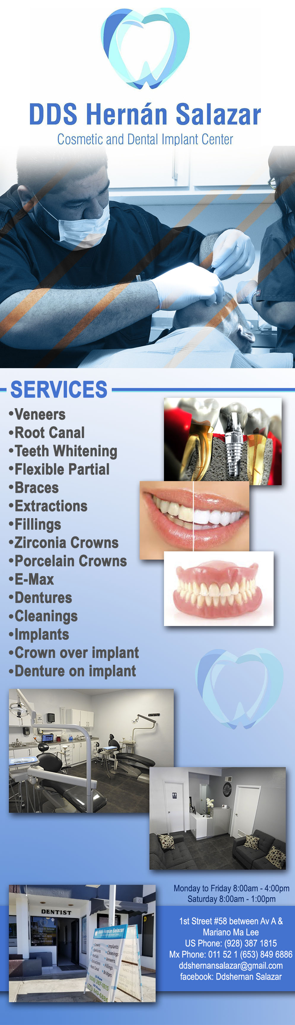 DDS Hernán Salazar in Algodones  in Algodones  Veneers