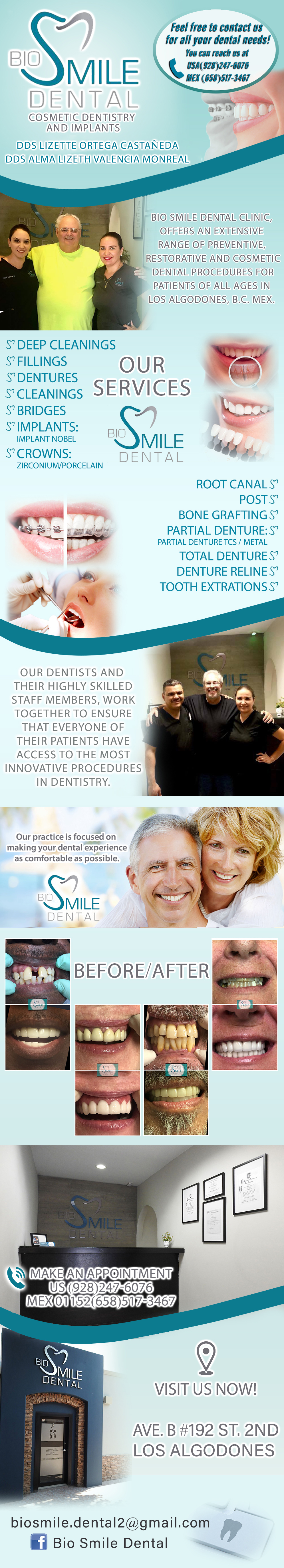 Bio Smile Dental DDS LIZETTE ORTEGA / DDS ALMA L. VALENCIA in Algodones  in Algodones  D.D.S. Lizette Ortega Castañeda D.D.S. Alma Lizeth Valencia Monreal Porcelain crown Veneers (metal free crown) Jackets Gold crown Crown for implant Flexible partial Metal partial whith comfort hook Metal partial Extractions Wisdom molar regular extraction Wisdom molar surgery Cleaning Deep Cleaning Bleanching (with lasser) Dentures (full set) Dentures with porcelain teet Dentures (upper or lower) Dentures relining Dentures with mollo Dentures repair Lower mini implants Upper mini implants White filings Individual Implants Braces Root Canal Post Periodontics & Implants     D.D.S. Lizette Ortega Castañeda D.D.S. Alma Lizeth Valencia Monreal Porcelain crown Veneers (metal free crown) Jackets Gold crown Crown for implant Flexible partial Metal partial whith comfort hook Metal partial Extractions Wisdom molar regular extraction Wisdom molar surgery Cleaning Deep Cleaning Bleanching (with lasser) Dentures (full set) Dentures with porcelain teet Dentures (upper or lower) Dentures relining Dentures with mollo Dentures repair Lower mini implants Upper mini implants White filings Individual Implants Braces Root Canal Post Periodontics & Implants