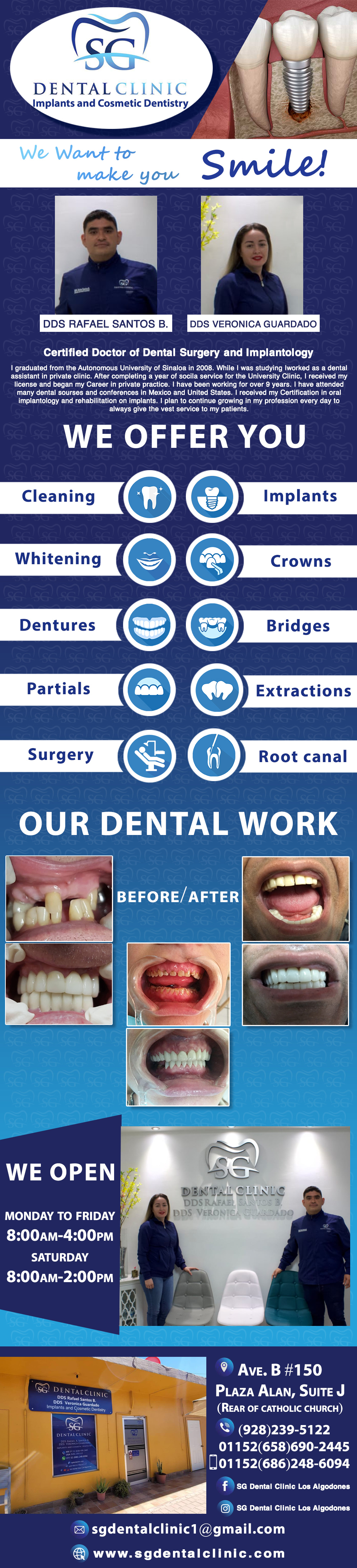 SG Dental Clinic D.D.S. Rafael Santos B. in Algodones  in Algodones  Porcelain crown Veneers (metal free crown) Jackets Gold crown Crown for implant Flexible partial Metal partial whith comfort hook Metal partial Extractions Wisdom molar regular extraction Wisdom molar surgery Cleaning Deep Cleaning Bleanching (with lasser) Dentures (full set) Dentures with porcelain teet Dentures (upper or lower) Dentures relining Dentures with mollo Dentures repair Lower mini implants Upper mini implants White filings Individual Implants Braces Root Canal Post Periodontics & Implants             Porcelain crown Veneers (metal free crown) Jackets Gold crown Crown for implant Flexible partial Metal partial whith comfort hook Metal partial Extractions Wisdom molar regular extraction Wisdom molar surgery Cleaning Deep Cleaning Bleanching (with lasser) Dentures (full set) Dentures with porcelain teet Dentures (upper or lower) Dentures relining Dentures with mollo Dentures repair Lower mini implants Upper mini implants White filings Individual Implants Braces Root Canal Post Periodontics & Implants
