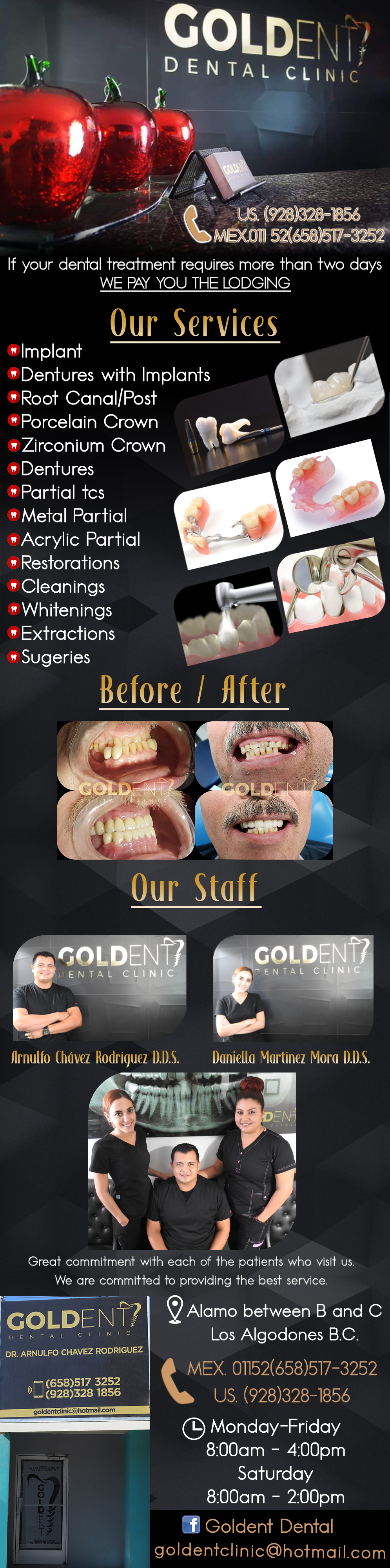 GOLDENT DENTAL CLINIC  Arnulfo Chávez Rodríguez DDS in Algodones  in Algodones  DENTAL SERVICES: Flexible Partials Porcelain Crown & Bridge Traditional Acrylic and Flexible Dentures Dentures over Implants Implants with bridge Traditional Partials Veneers Root Canal Therapy Fillings in Porcelain or Zirconia E-max Traditional & Deep Cleaning Relines (Hard Soft) Repair to Dentures Prescriptions General Oral Surgery Wisdom Tooth Surger          DENTAL SERVICES: Flexible Partials Porcelain Crown & Bridge Traditional Acrylic and Flexible Dentures Dentures over Implants Implants with bridge Traditional Partials Veneers Root Canal Therapy Fillings in Porcelain or Zirconia E-max Traditional & Deep Cleaning Relines (Hard Soft) Repair to Dentures Prescriptions General Oral Surgery Wisdom Tooth Surger